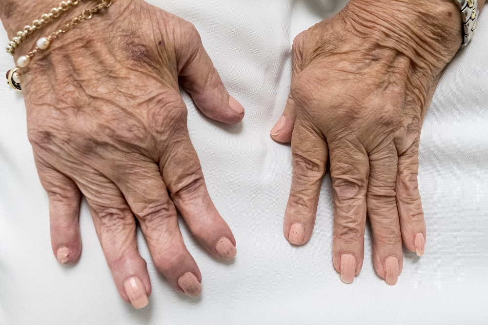 Inst Scientists Formulate Nanoparticle To Reduce Severity Of Rheumatoid Arthritis Dd News